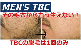 メンズTBC 永久脱毛