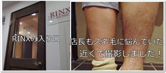 RINX渋谷店 スネ毛脱毛