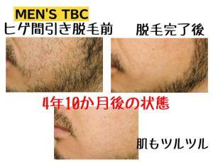 TBC ヒゲ脱毛