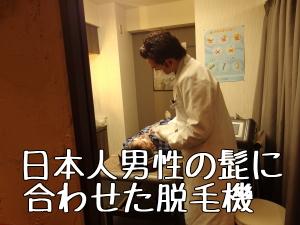 日本のメンズヒゲ脱毛