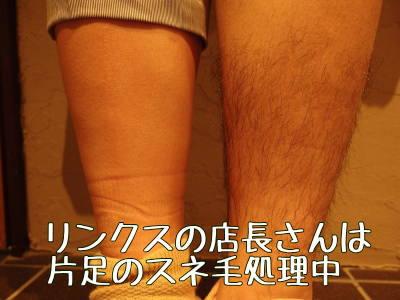 RINX渋谷店店長のスネ毛脱毛